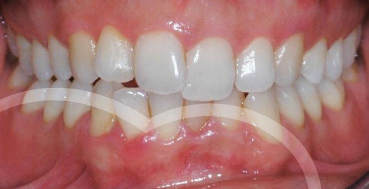 Caso n.1 - Prima del trattamento