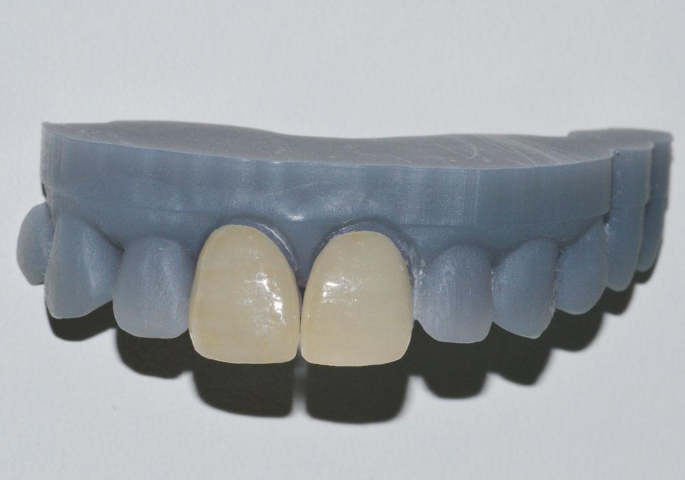 Faccetta dentale applicata sul 3D